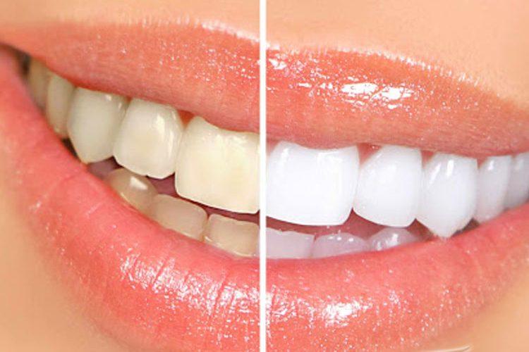 بلیچینگ دندان دندانپزشکی دکتر ملاطایفه