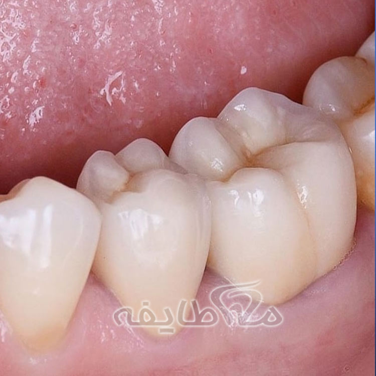روکش دندان | هزینه روکش دندان
