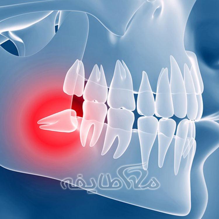جراحی دندان های نهفته