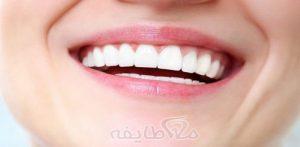 کامپوزیت دندان در تهرانپارس
