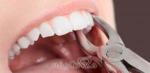 کشیدن دندان در تهرانپارس ( خاک سفید )