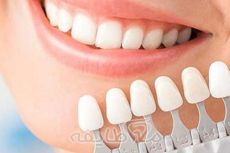 روکش دندان در تهرانپارس