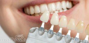 هزینه ( قیمت ) روکش دندان