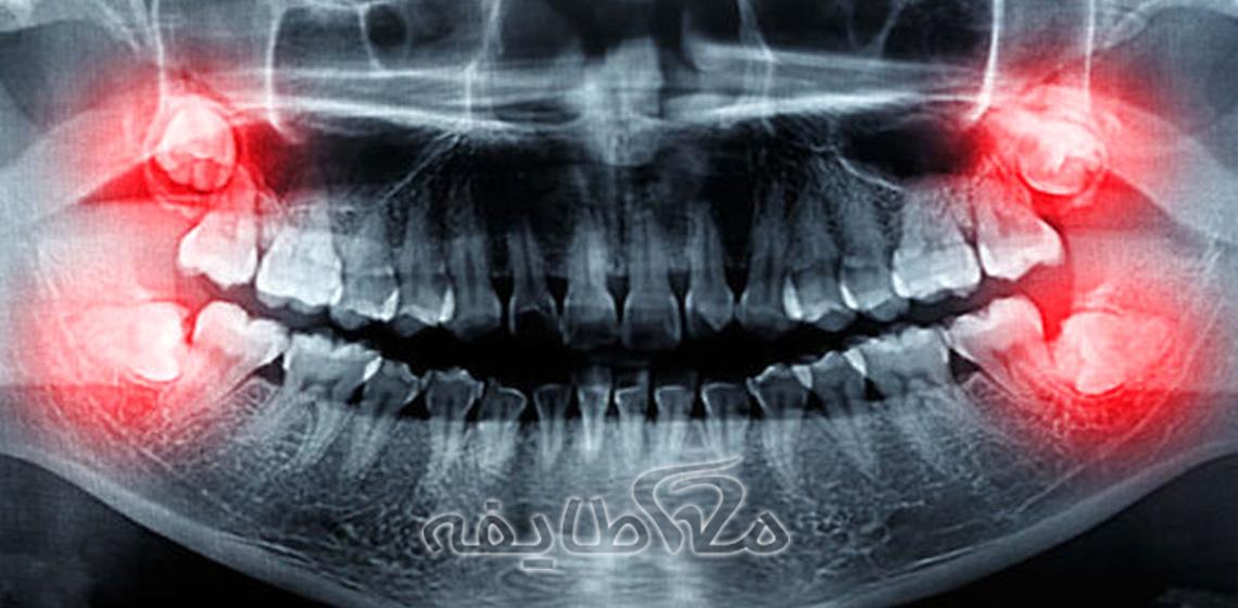 هزینه کشیدن دندان عقل