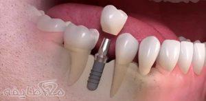 ایمپلنت دندان در تهرانپارس