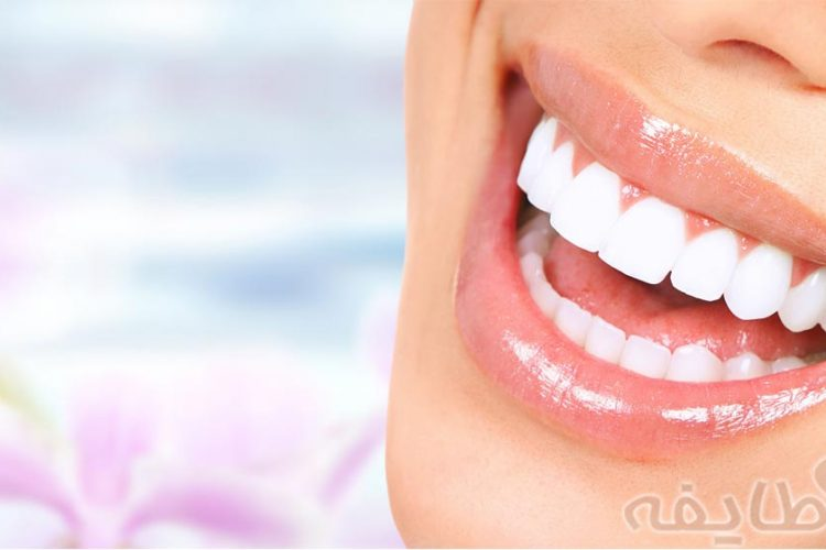 لمینت دندان در تهرانپارس