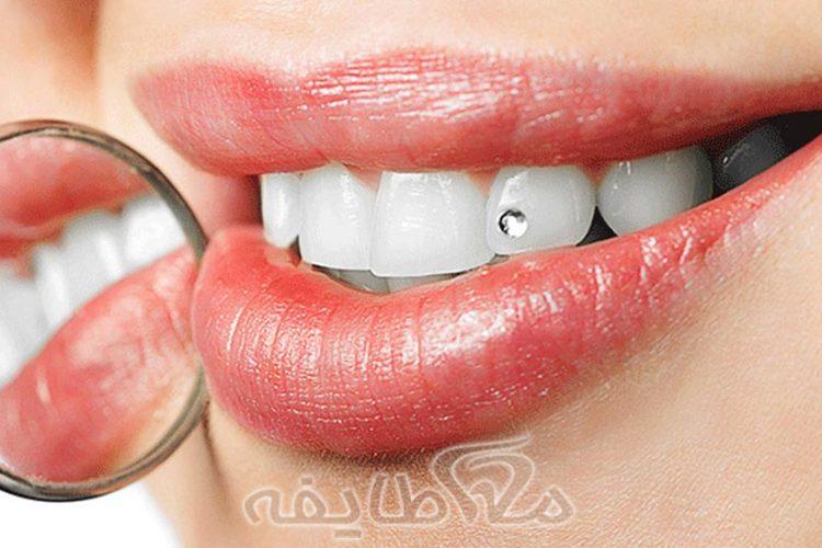 کاشت نگین دندان در تهرانپارس