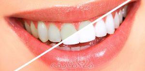 بلیچینگ دندان در تهرانپارس