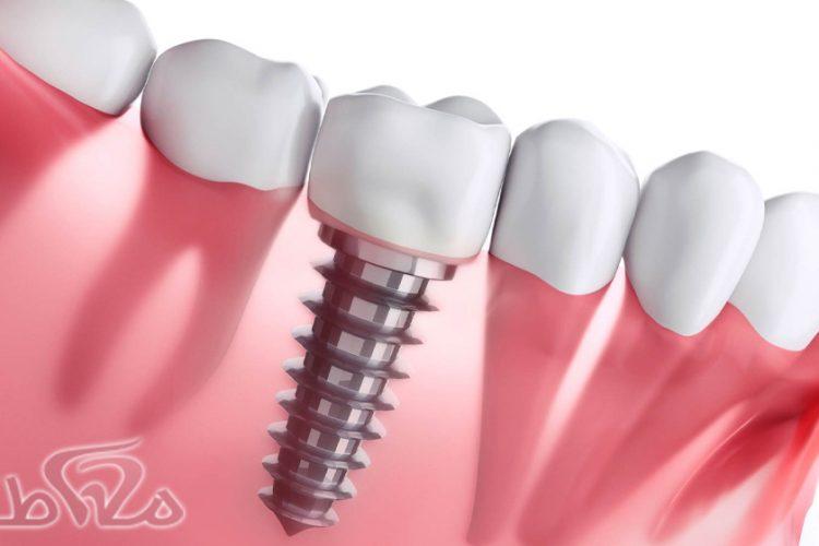 ایمپلنت دندان شرق تهران