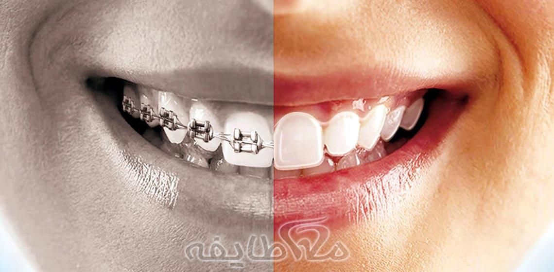 ارتودنسی دندان در تهرانپارس