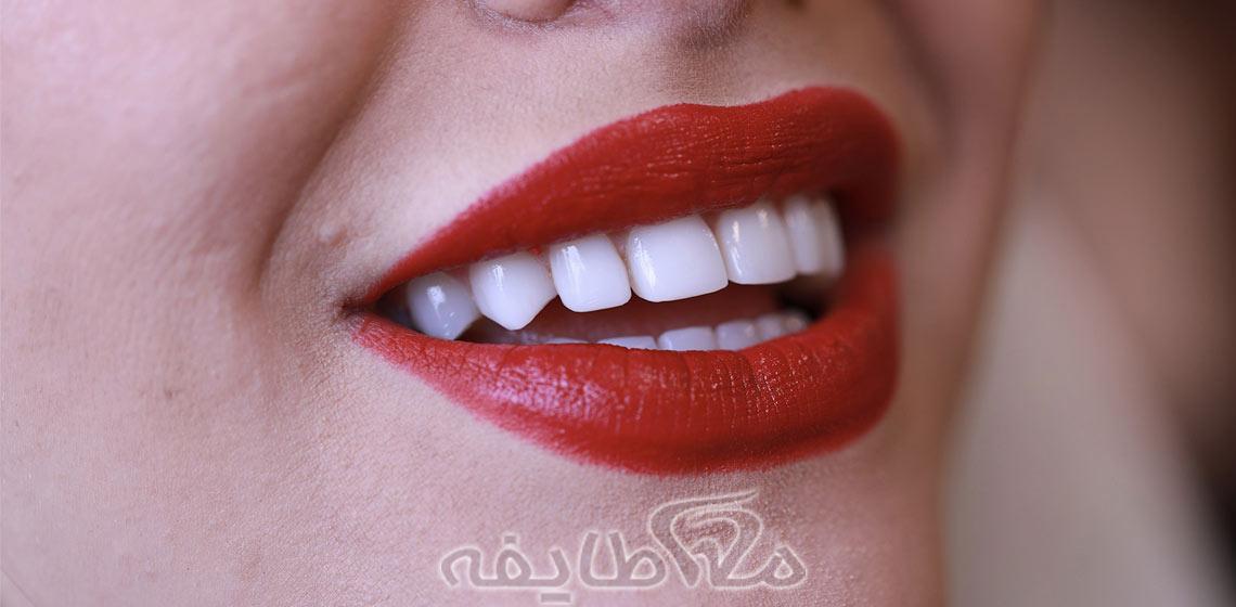 خدمات زیبایی دندان در تهرانپارس