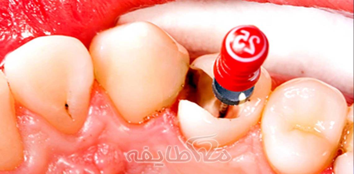 عصب کشی دندان در تهرانپارس