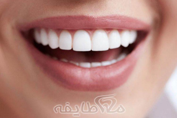 هزینه سفید کردن دندان یا بلیچینگ