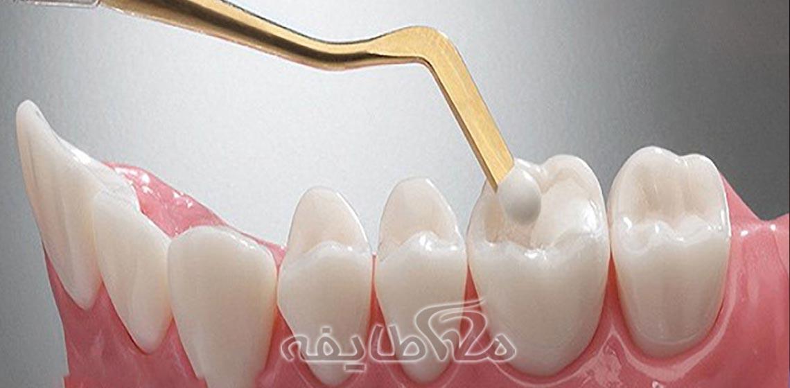 پر کردن و ترمیم دندان تهرانپارس
