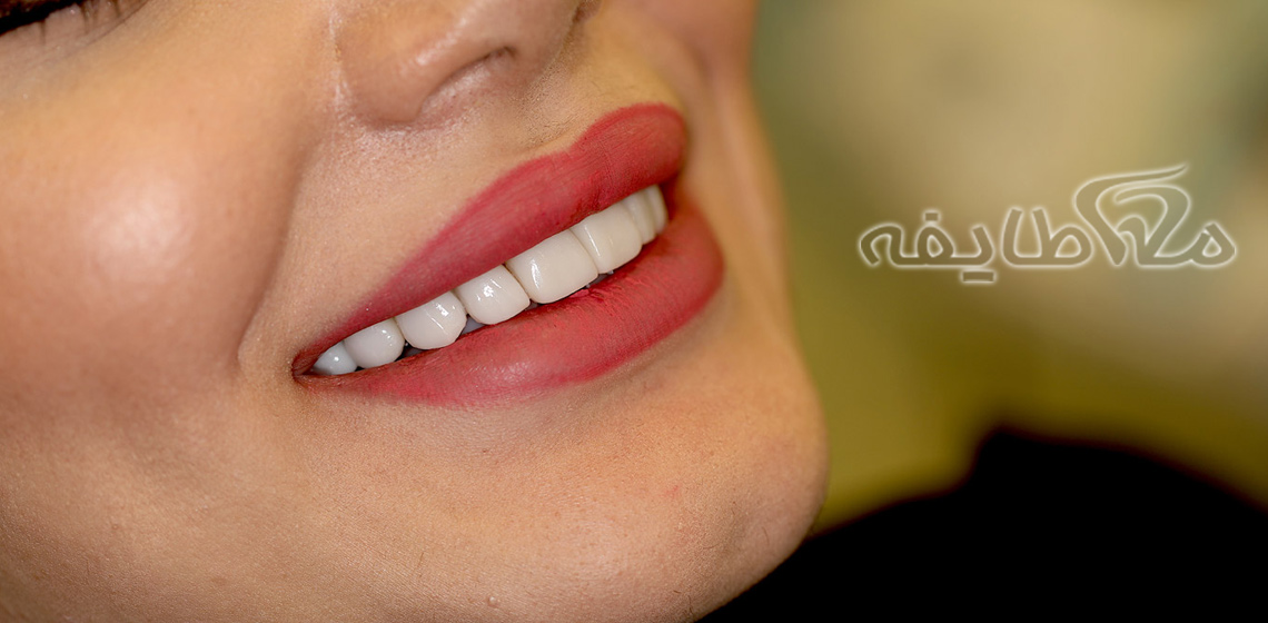 هزینه ( قیمت ) لمینت دندان