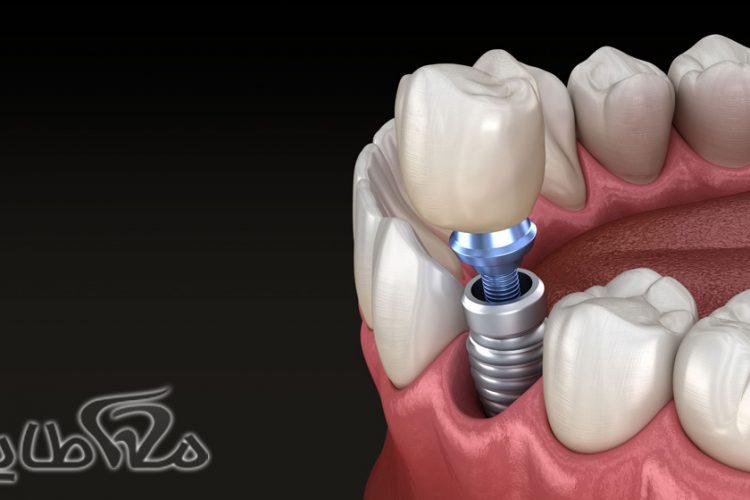 ایمپلنت دندان در بومهن
