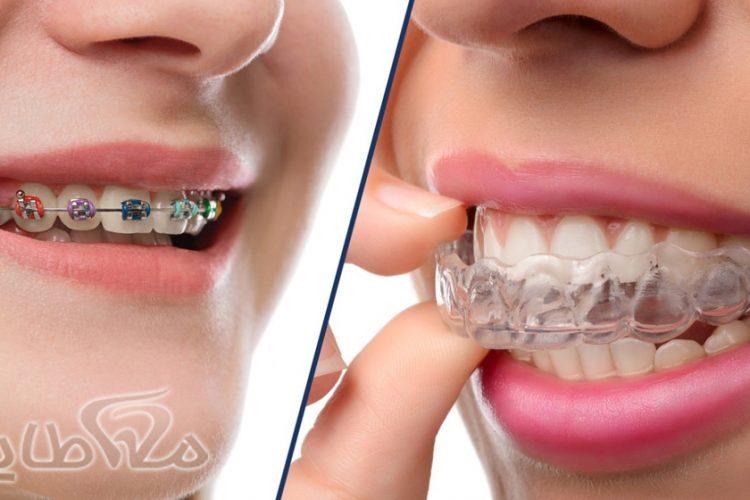 ارتودنسی دندان تهرانپارس