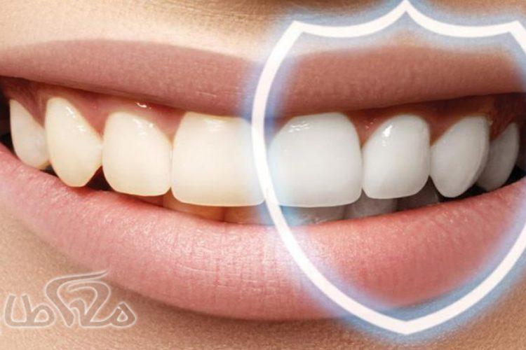 پاکسازی عمیق دندان