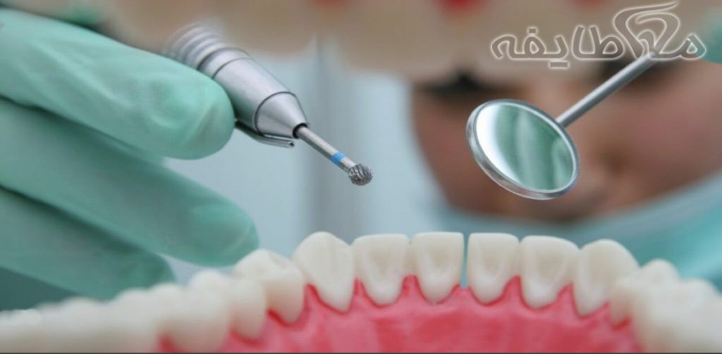 جرم گیری دندان و هزینه جرم گیری