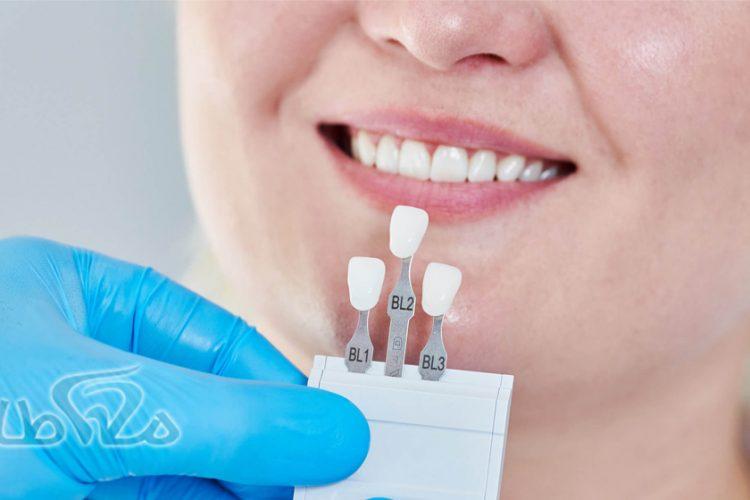 همه چیز در مورد روکش دندان