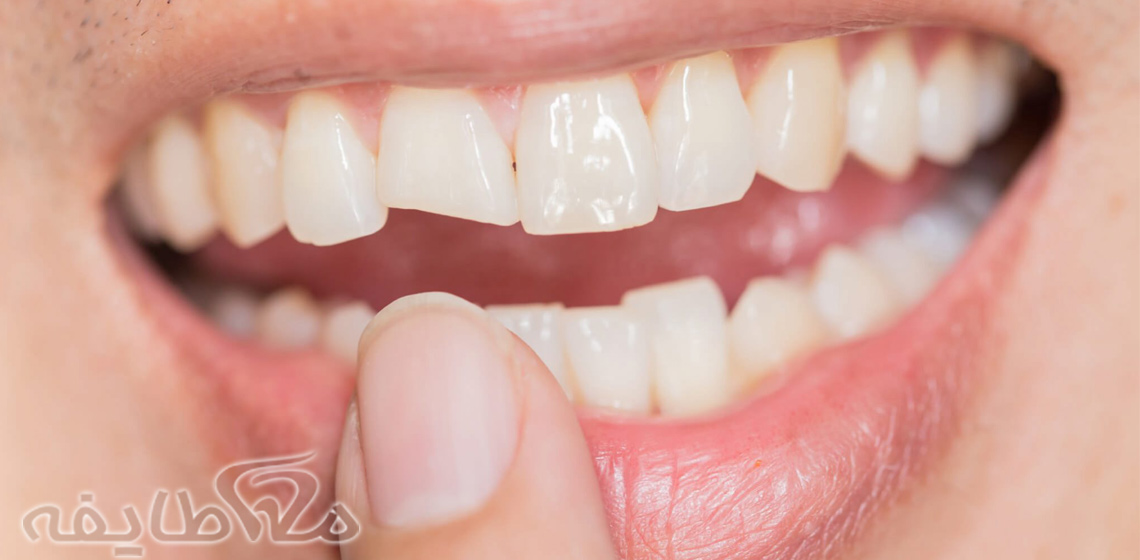دلیل شکستن دندان ها