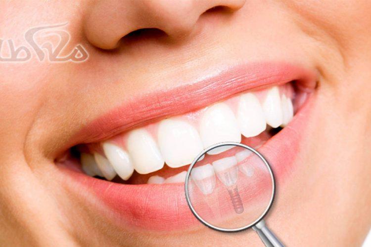 ایمپلنت دندان در حکیمیه