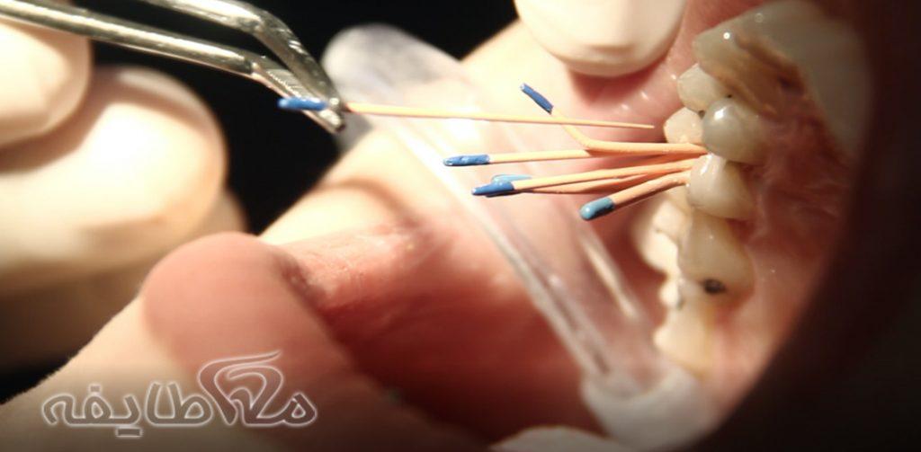 عصب کشی دندان در قنات کوثر