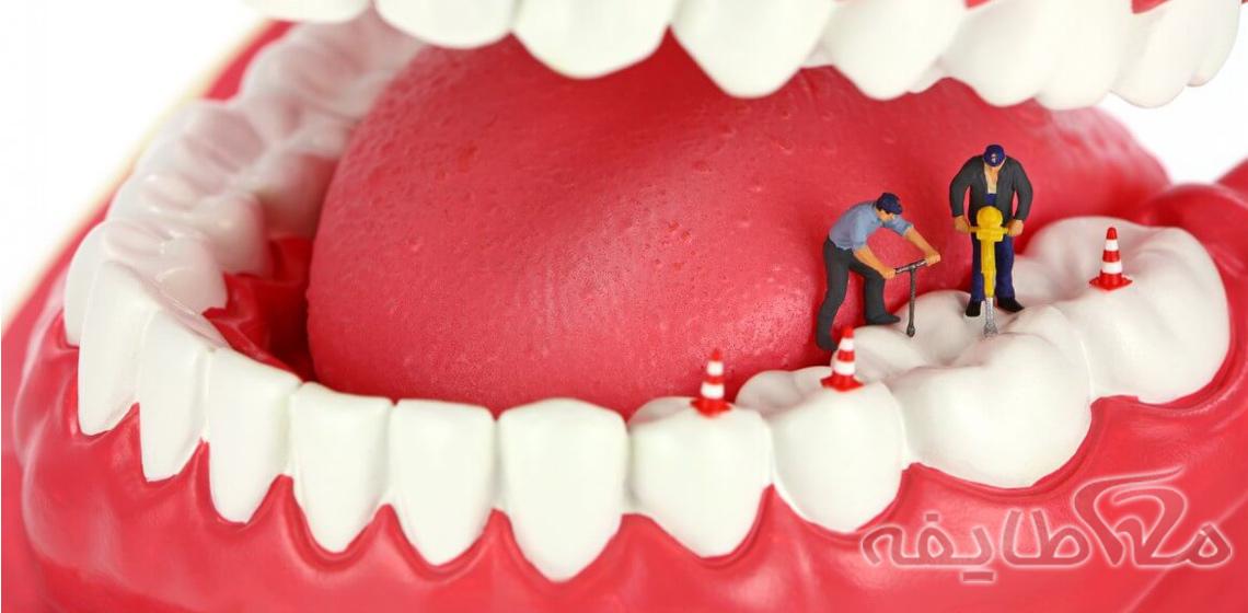 عصب کشی دندان در شهرک شهید بهشتی
