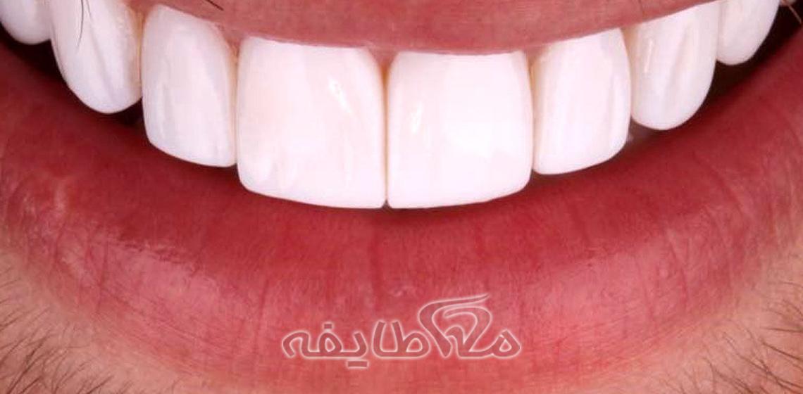 کامپوزیت دندان در سازمان گوشت