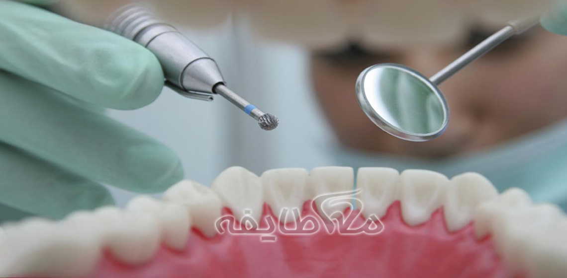 کامپوزیت دندان در شهرک شهید بهشتی