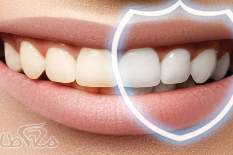 جرم گیری دندان در شهرک شهید بهشتی