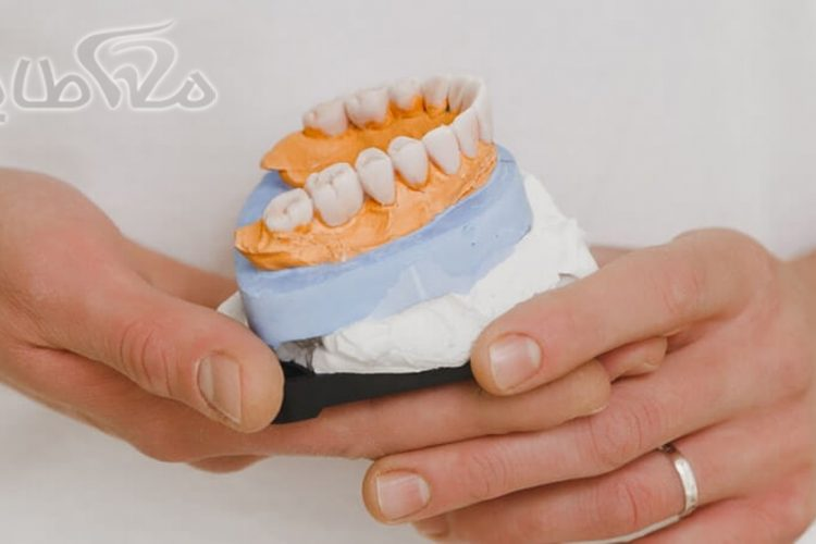 دندان مصنوعی در حکیمیه