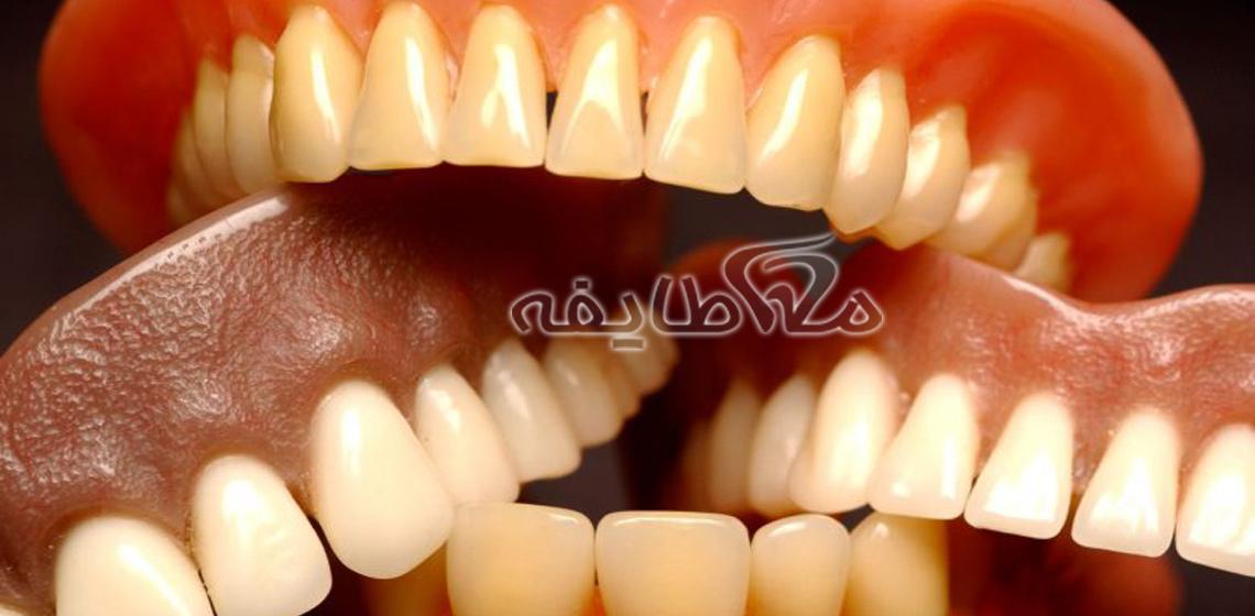 دندان مصنوعی در جشنواره