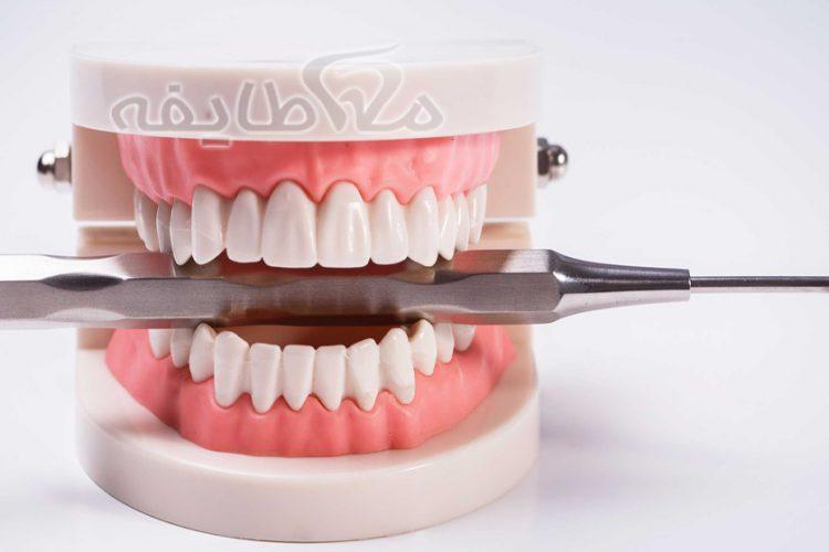 دندان مصنوعی در قنات کوثر