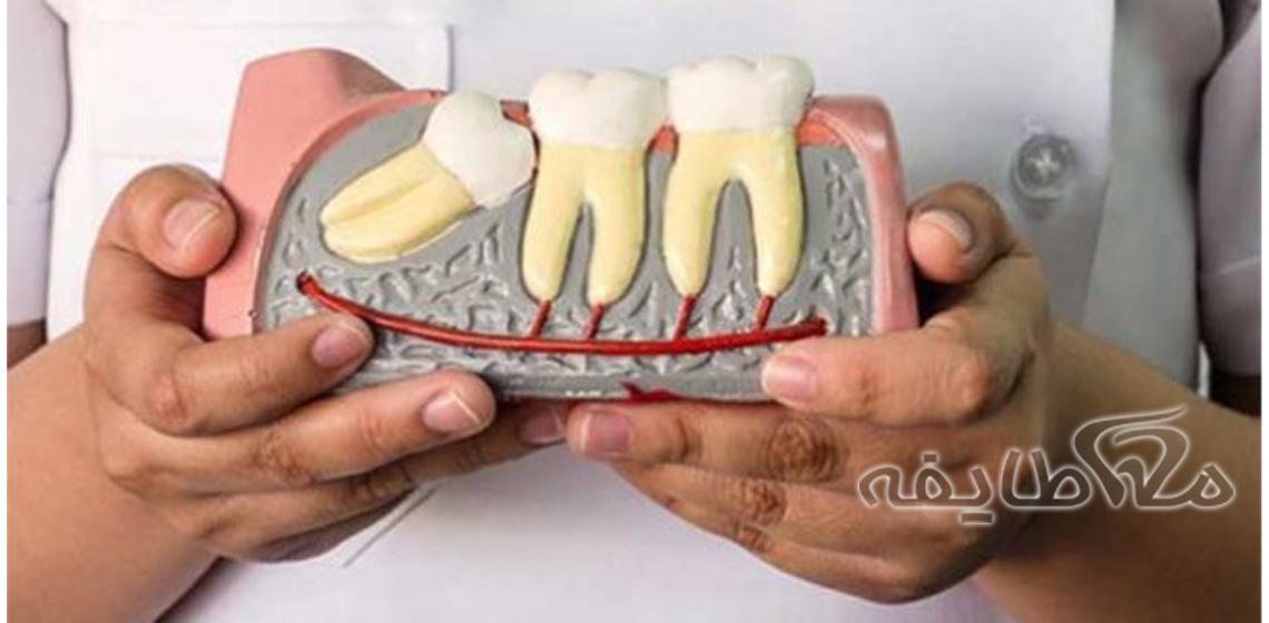 جراحی دندان نهفته در امین ( زهدی )
