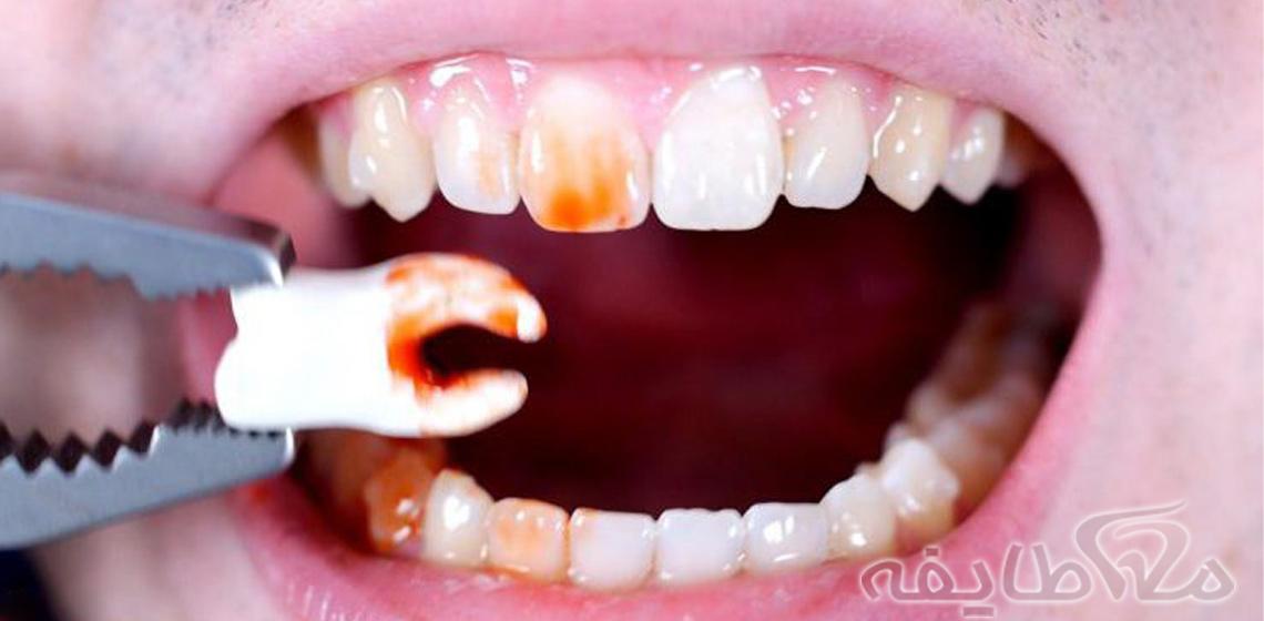 جراحی دندان نهفته در رسالت